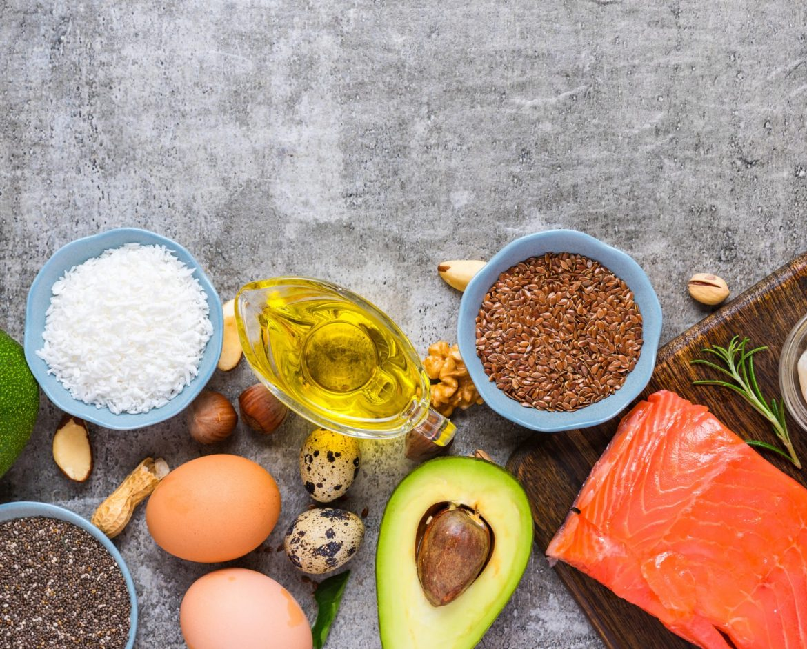 How Does My Diet Affect My Brain?